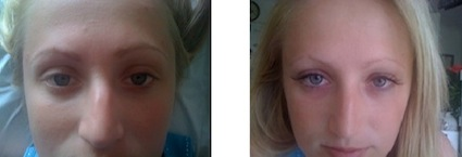 Eyelash extensions/ before & after photos. Client A