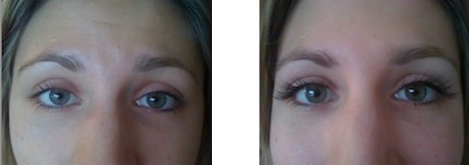 Eyelash extensions/ before & after photos. Client B